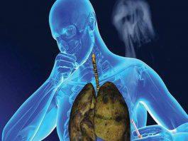 Cách nhận biết và điều trị bệnh ung thư phổi