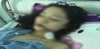 Cô gái bị bạn cũ rạch mặt phải khâu 60 mũi ở Bắc Ninh
