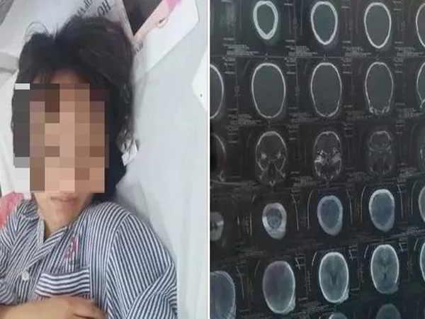Nữ sinh bị đánh hội đồng phải nhập viện ở Quảng Ninh