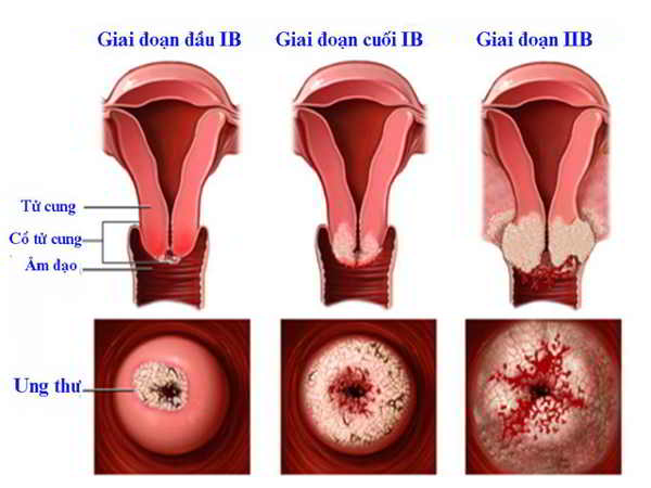 Ung thư cổ tử cung - Nguyên nhân, biểu hiện và phương pháp điều trị