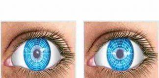 Những thông tin cần biết về bệnh loạn thị