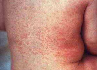 Nguyên nhân, biểu hiện và cách điều trị sốt phát ban
