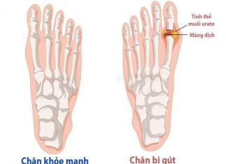 Nguyên nhân, triệu chứng và chế độ dinh dưỡng cho người bệnh gout