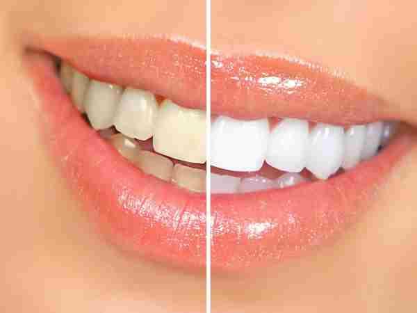 Các cách làm trắng răng đơn giản tại nhà